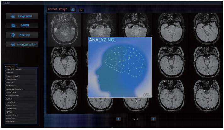 MRI-based Diagnostic Software